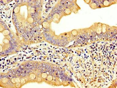 Immunohistochemistry (Formalin/PFA-fixed paraffin-embedded sections) - Anti-LPP antibody (ab234999)