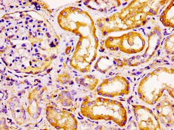 Immunohistochemistry (Formalin/PFA-fixed paraffin-embedded sections) - Anti-CCR6 antibody (ab235002)