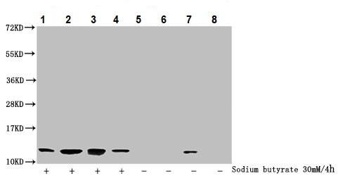 Western blot - Anti-Histone H4 (2-hydroxyisobutyryl K16) antibody (ab235006)