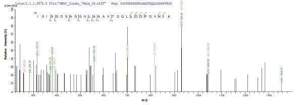 Mass Spectrometry - Recombinant Human AADAC/DAC protein (Tagged) (ab235022)