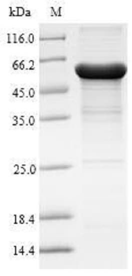 SDS-PAGE - Recombinant Human AADAC/DAC protein (Tagged) (ab235022)