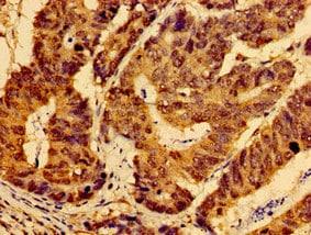 Immunohistochemistry (Formalin/PFA-fixed paraffin-embedded sections) - Anti-AHSA2 antibody (ab235023)