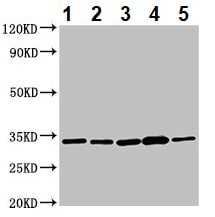 Western blot - Anti-AHSA2 antibody (ab235023)