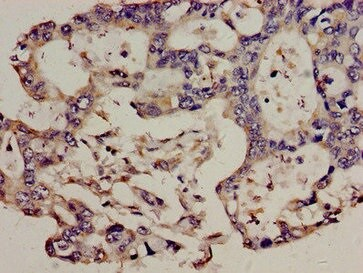 Immunohistochemistry (Formalin/PFA-fixed paraffin-embedded sections) - Anti-TCR V beta 3.1 antibody (ab235044)