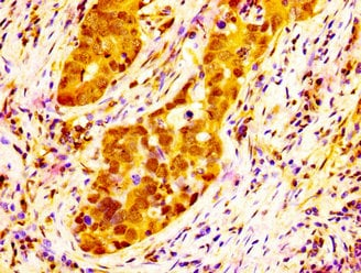 Immunohistochemistry (Formalin/PFA-fixed paraffin-embedded sections) - Anti-NAT10 antibody (ab235048)