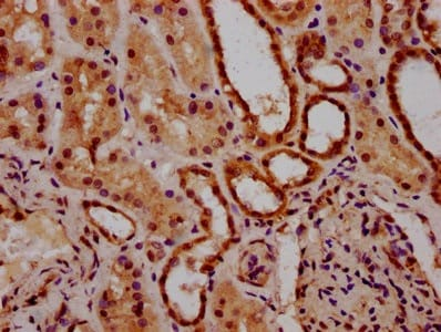 Immunohistochemistry (Formalin/PFA-fixed paraffin-embedded sections) - Anti-ACRC antibody (ab235051)