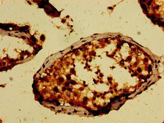 Immunohistochemistry (Formalin/PFA-fixed paraffin-embedded sections) - Anti-NEK9 antibody (ab235052)