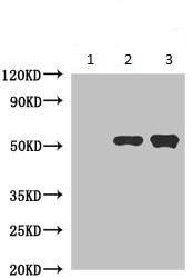 Immunoprecipitation - Anti-CAMKIV antibody (ab235058)