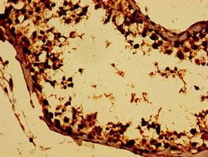 Immunohistochemistry (Formalin/PFA-fixed paraffin-embedded sections) - Anti-BTG4 antibody (ab235085)