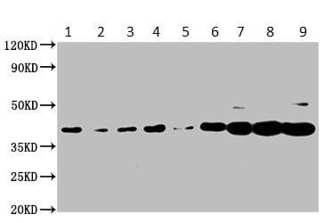 Western blot - Anti-PNCK antibody (ab235093)