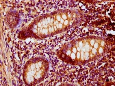Immunohistochemistry (Formalin/PFA-fixed paraffin-embedded sections) - Anti-PNCK antibody (ab235093)