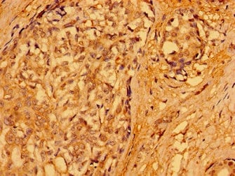 Immunohistochemistry (Formalin/PFA-fixed paraffin-embedded sections) - Anti-PACSIN3 antibody (ab235095)