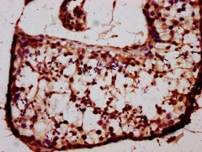 Immunohistochemistry (Formalin/PFA-fixed paraffin-embedded sections) - Anti-BARHL1 antibody (ab235096)