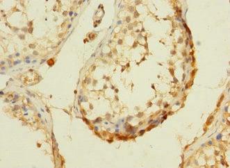 Immunohistochemistry (Formalin/PFA-fixed paraffin-embedded sections) - Anti-DHX32 antibody (ab235100)