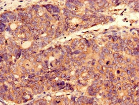 Immunohistochemistry (Formalin/PFA-fixed paraffin-embedded sections) - Anti-CTPS2 antibody (ab235109)