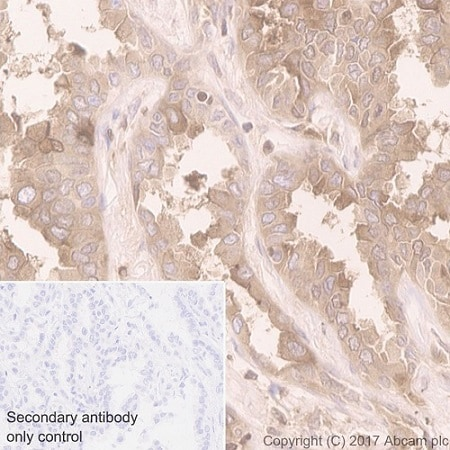 Immunohistochemistry (Formalin/PFA-fixed paraffin-embedded sections) - Anti-Folate Binding Protein/FBP antibody [EPR20277] - BSA and Azide free (ab235140)