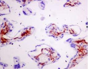 Immunohistochemistry (Formalin/PFA-fixed paraffin-embedded sections) - Anti-Podoplanin / gp36 antibody [EPR7072] - BSA and Azide free (ab235141)