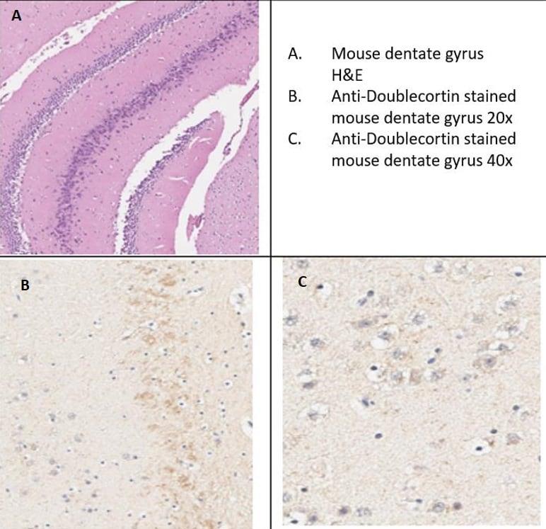 Immunohistochemistry (Formalin/PFA-fixed paraffin-embedded sections) - Anti-Doublecortin antibody (ab235153)