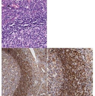 Immunohistochemistry (Formalin/PFA-fixed paraffin-embedded sections) - Anti-MeCP2 antibody (ab235174)