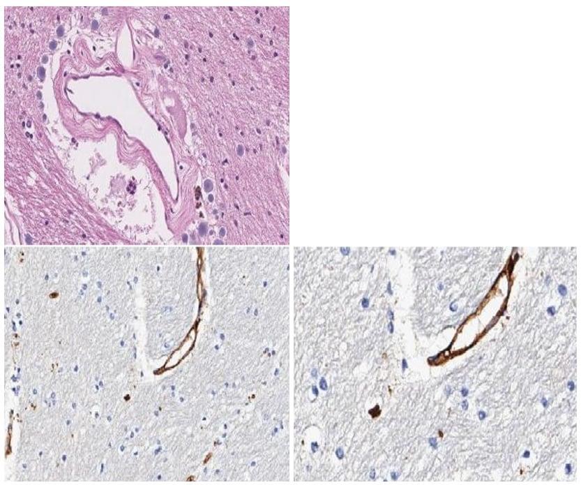 Immunohistochemistry (Formalin/PFA-fixed paraffin-embedded sections) - Anti-C9orf72 antibody (ab235189)