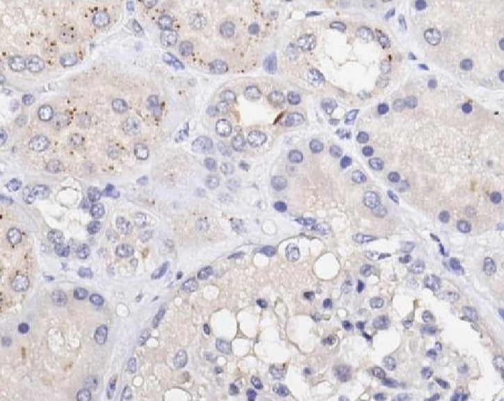 Immunohistochemistry (Formalin/PFA-fixed paraffin-embedded sections) - Anti-EEF1A2 antibody (ab235190)