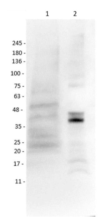 Western blot - Anti-MASH1/Achaete-scute homolog 1 antibody (ab235198)