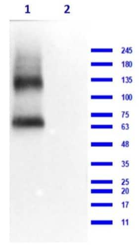 Western blot - Anti-EAAT2 antibody (ab235202)