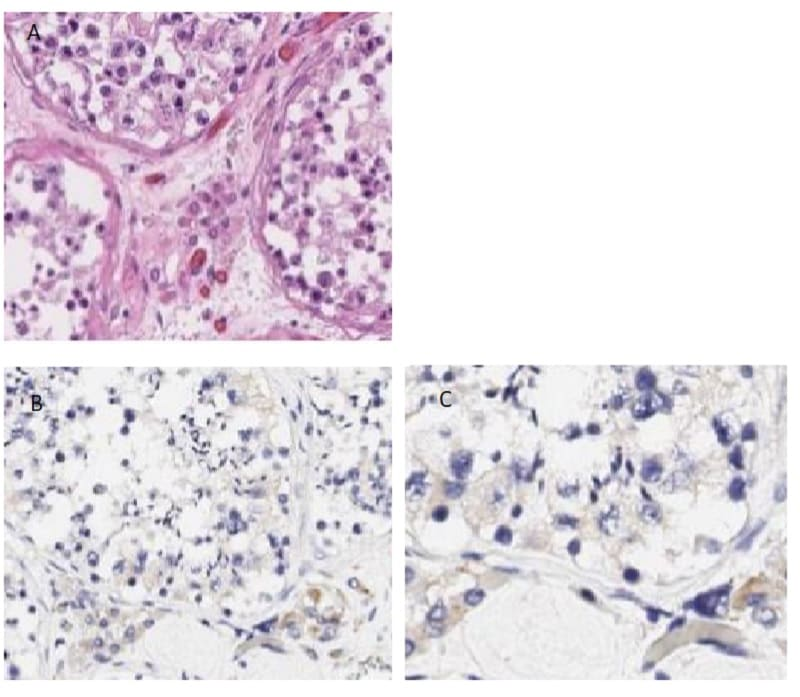 Immunohistochemistry (Formalin/PFA-fixed paraffin-embedded sections) - Anti-PI 3 Kinase p55 gamma antibody (ab235234)
