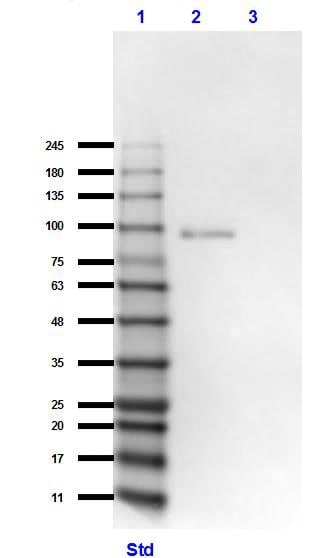 Western blot - Anti-GRK2 antibody (ab235240)