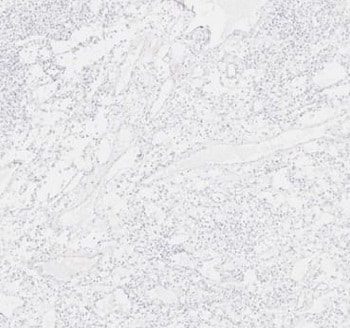 Immunohistochemistry (Formalin/PFA-fixed paraffin-embedded sections) - Anti-SCP3 antibody (ab235254)