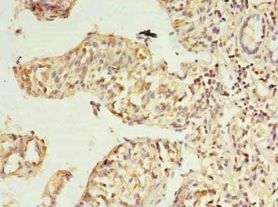Immunohistochemistry (Formalin/PFA-fixed paraffin-embedded sections) - Anti-RWDD2A antibody (ab235309)