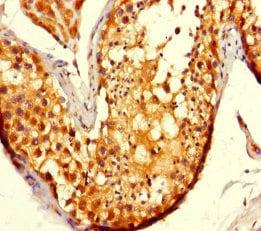 Immunohistochemistry (Formalin/PFA-fixed paraffin-embedded sections) - Anti-ADCK2 antibody (ab235312)