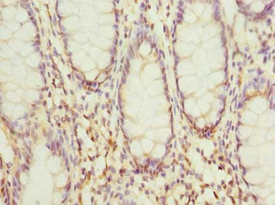 Immunohistochemistry (Formalin/PFA-fixed paraffin-embedded sections) - Anti-HSDL2 antibody (ab235317)