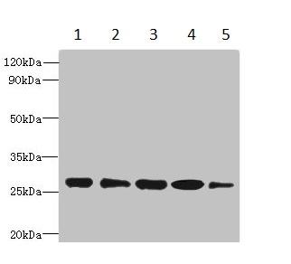 Western blot - Anti-HDHD3 antibody (ab235319)
