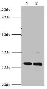 Western blot - Anti-PIGX antibody (ab235338)