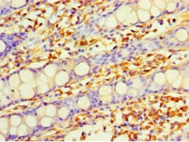 Immunohistochemistry (Formalin/PFA-fixed paraffin-embedded sections) - Anti-DHRS7 antibody (ab235361)