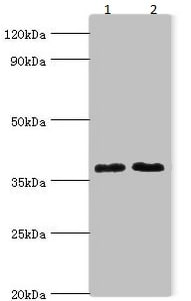 Western blot - Anti-DHRS7 antibody (ab235361)
