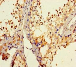 Immunohistochemistry (Formalin/PFA-fixed paraffin-embedded sections) - Anti-DHX35 antibody (ab235366)