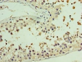 Immunohistochemistry (Formalin/PFA-fixed paraffin-embedded sections) - Anti-AASDHPPT antibody (ab235376)