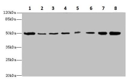 Western blot - Anti-PGS1 antibody (ab235379)