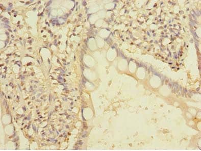 Immunohistochemistry (Formalin/PFA-fixed paraffin-embedded sections) - Anti-FAM86A antibody (ab235380)