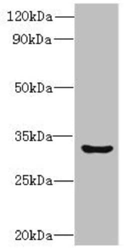Western blot - Anti-CLEC1 antibody (ab235396)