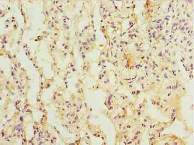 Immunohistochemistry (Formalin/PFA-fixed paraffin-embedded sections) - Anti-C14orf149 antibody (ab235399)