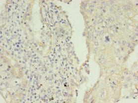 Immunohistochemistry (Formalin/PFA-fixed paraffin-embedded sections) - Anti-Cytokeratin 8 antibody (ab235415)