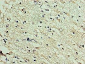 Immunohistochemistry (Formalin/PFA-fixed paraffin-embedded sections) - Anti-DNAJC30 antibody (ab235417)