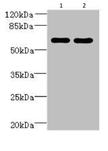 Western blot - Anti-ZNF215 antibody (ab235431)