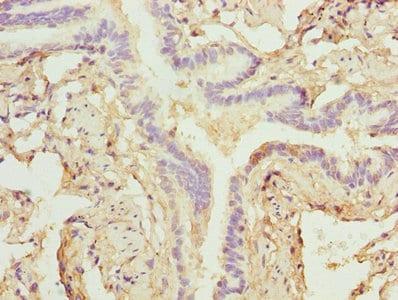Immunohistochemistry (Formalin/PFA-fixed paraffin-embedded sections) - Anti-ZNF212 antibody (ab235438)