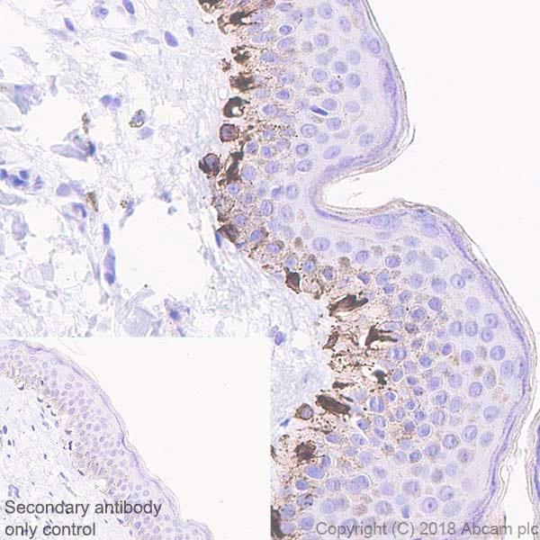 Immunohistochemistry (Formalin/PFA-fixed paraffin-embedded sections) - Anti-TRP1 antibody [EPR21956] (ab235446)