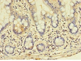 Immunohistochemistry (Formalin/PFA-fixed paraffin-embedded sections) - Anti-GALNT14 antibody (ab235526)