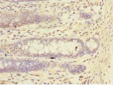 Immunohistochemistry (Formalin/PFA-fixed paraffin-embedded sections) - Anti-TRIM17 antibody (ab235527)